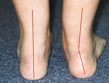 Adult acquired flat foot - pes planovalgus - OSOM